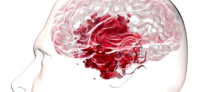 Разрыва аневризмы головного мозга и его последствия