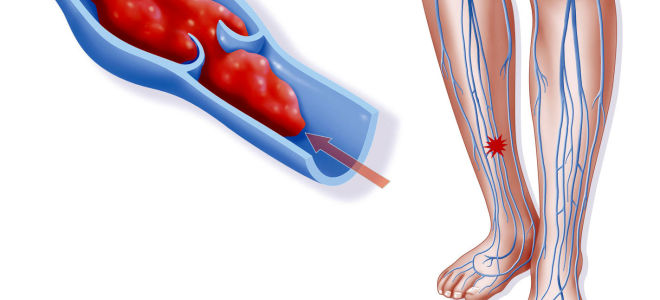 Тромбоз вен нижних конечностей: симптомы, диагностика и лечение