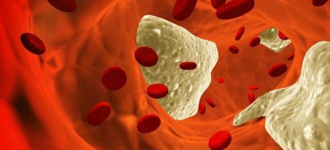Чем опасен атеросклероз?