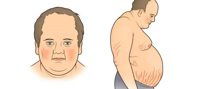 Что такое синдром Кушинга?