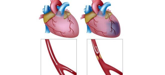 Ишемическая болезнь сердца при стенокардии