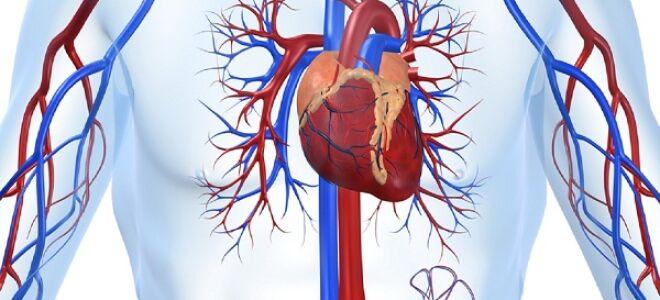 Хроническая ишемическая болезнь сердца