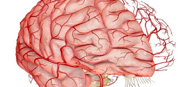 Гипоплазия сосудов головного мозга