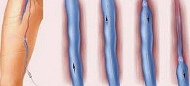 Окклюзивный тромбоз
