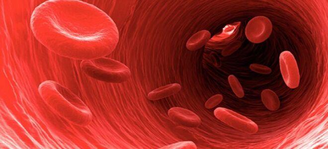 Тромболизис при ишемическом инсульте
