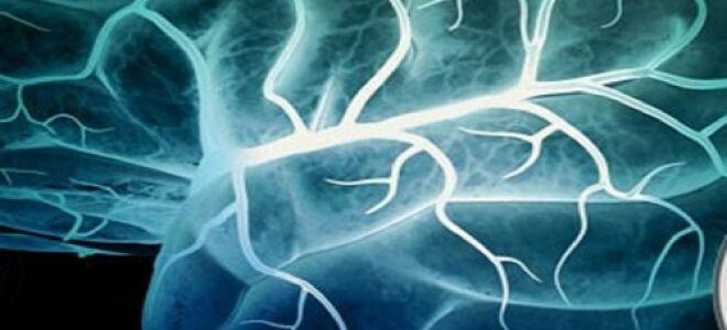 Первые симптомы и признаки надвигающегося инсульта