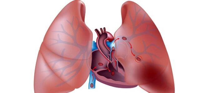 Аневризма легочной артерии