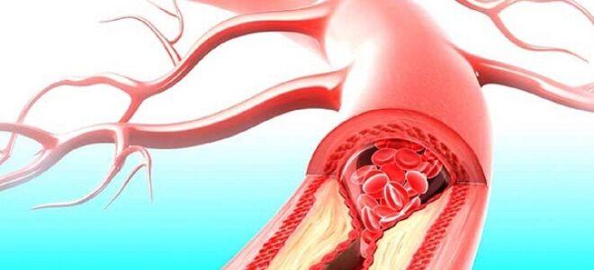 Патогенез ишемической болезни сердца
