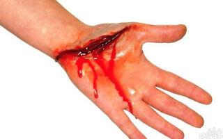 Как быстро остановить наружное кровотечение?