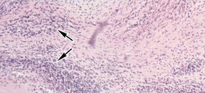 Что из себя представляет ревматический эндокардит?