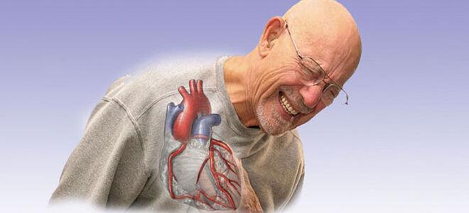 Причины и признаки ишемической болезни сердца