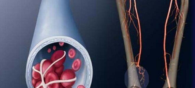 Тромбоз подключичной вены и другие виды тромбоза