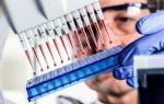 Анализ крови при инфаркте миокарда