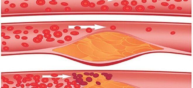 Что такое стенокардия напряжения 3-его функционального класса