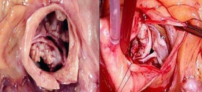 Что такое аортальный стеноз