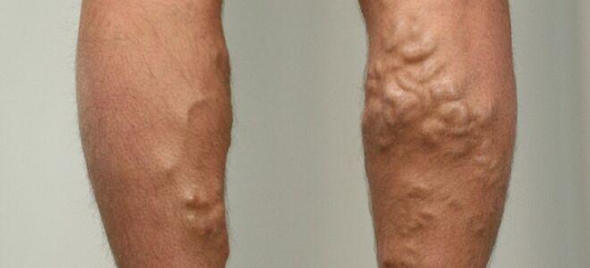 Всё о варикозном расширении вен на ногах