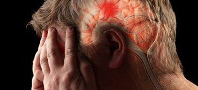 Что такое геморрагический инсульт?
