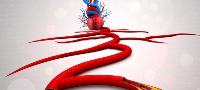 Склеродермия сосудов и сердца