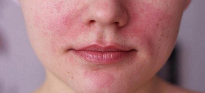 Варикоз на лице: почему появляется и как от него лечиться