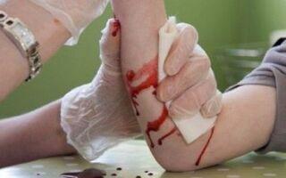 Как быстро остановить кровотечение из раны?