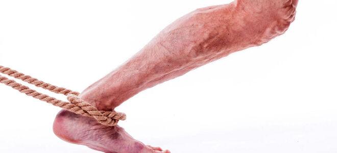 Всё о тромбофлебите нижних конечностей