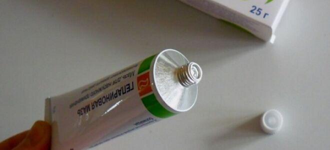 Гепариновая мазь при варикозе
