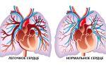 Чем опасен синдром легочного сердца и как его лечить?