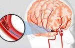 Что такое ишемическая атака?