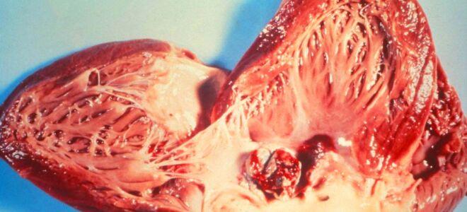 Внимание! Инфекционный эндокардит