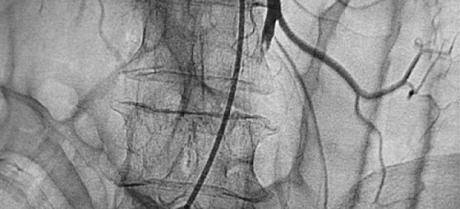 Как жить с заболеванием мезентериальный тромбоз