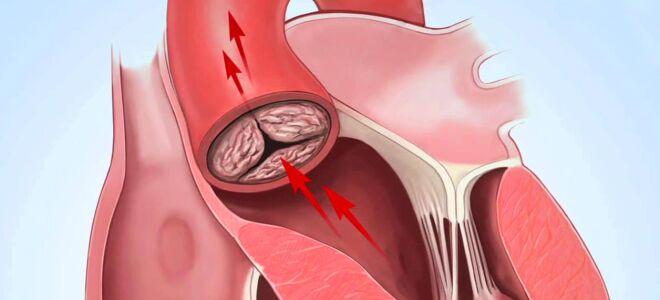 Аортальный стеноз: диагностика и лечение