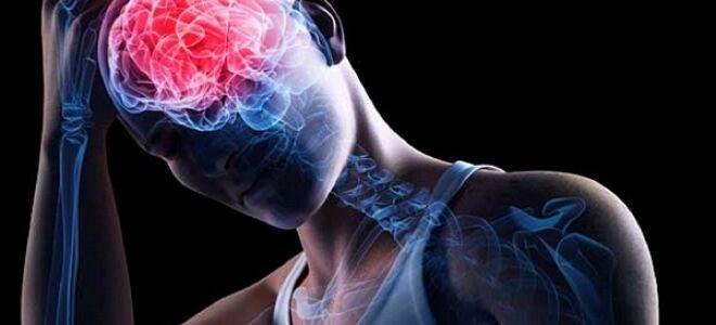 Симптомы и лечение стволового инсульта