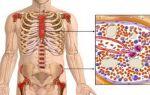 Миеломная болезнь — диагностика, симптомы и лечение