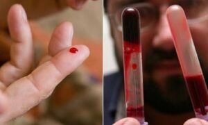 Анализ на густоту крови