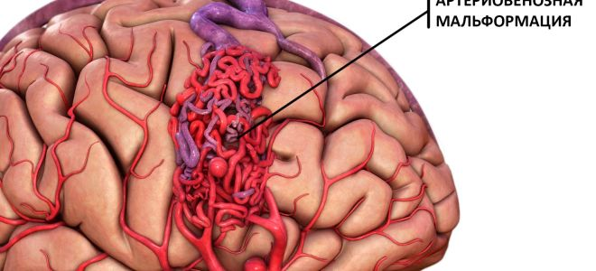 Что такое артериовенозная мальформация
