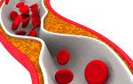 Что такое склероз аорты сердца и как лечат это заболевание?