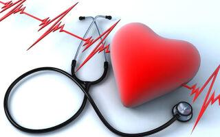 Фибрилляция сердца