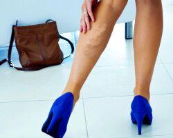 Сосудистые заболевания ног — обзор, симптомы и лечение