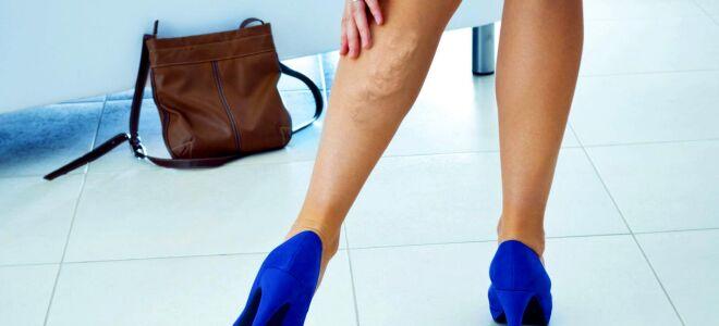 Сосудистые заболевания ног