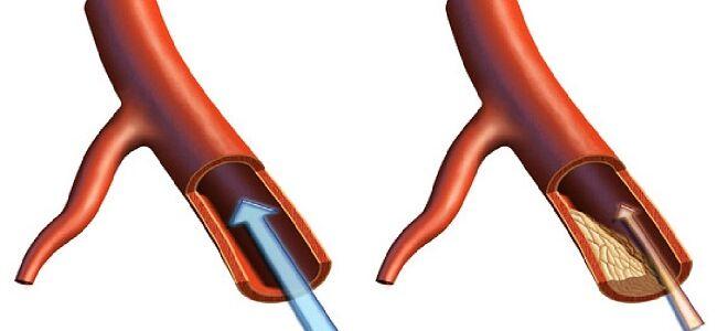 Виды атеросклероза. Классификация заболевания