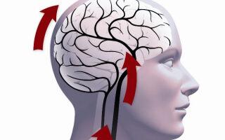 Чем чревата сосудистая недостаточность головного мозга?