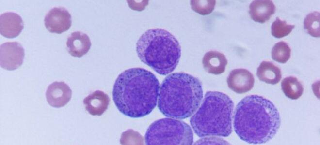 Острый миелобластный лейкоз