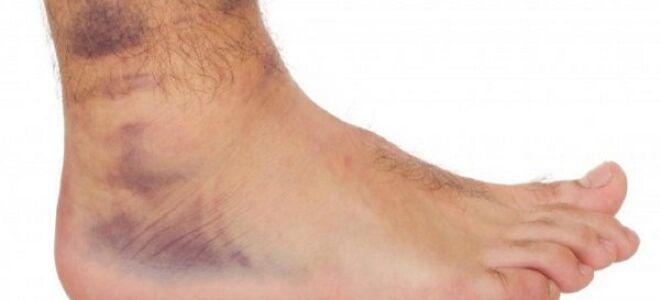 Язвы при тромбофлебите нижних конечностей