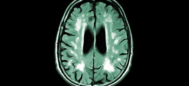 Причины развития сосудистой деменции