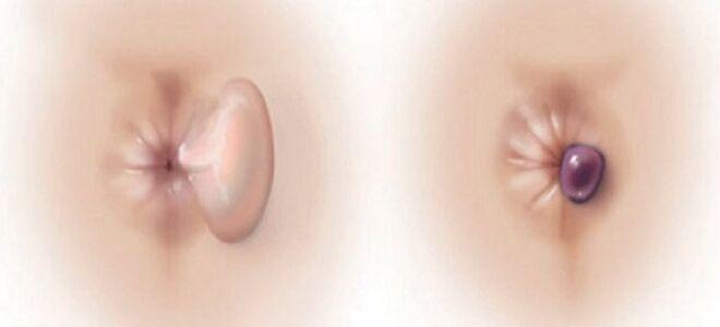 Причины тромбоза геморроидального узла: симптомы и лечение