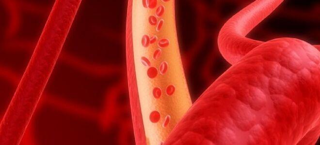 Лечение препаратами атеросклероза сосудов головного мозга