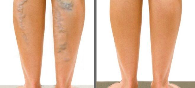 Изменения кожи ног при варикозе