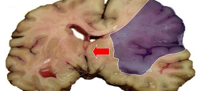 Причины и лечение ишемии головного мозга