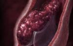 В чем разница между тромбозом и тромбофлебитом?
