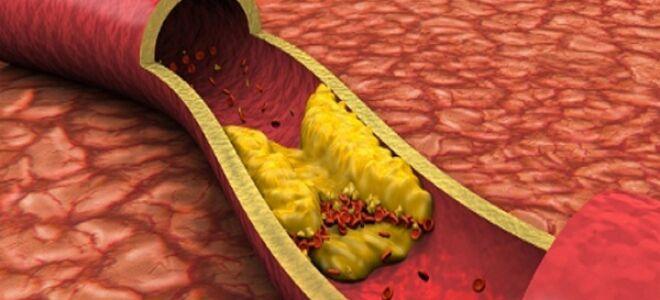 Генерализованный атеросклероз в подробностях